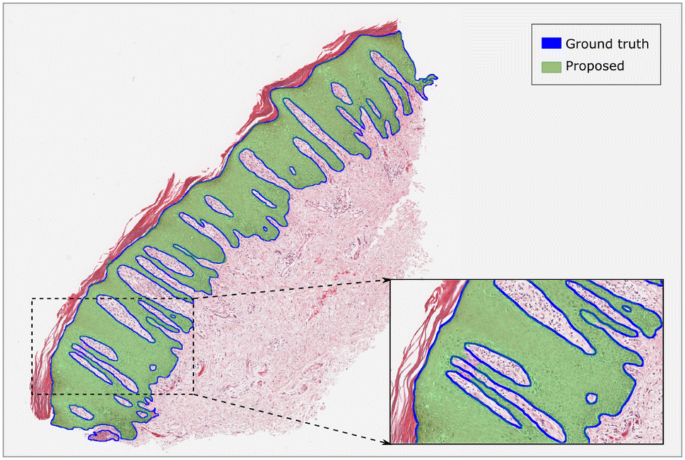 A U-net based approach to epidermal tissue segmentation in whole ...