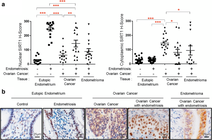 Differential Expression Of Kras And Sirt1 In Ovarian Cancers With And Without Endometriosis Springerlink