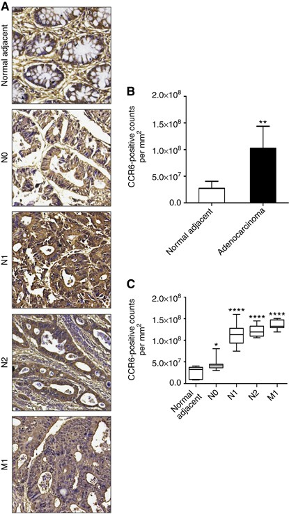 Ccr6 Expression In Colon Cancer Is Associated With Advanced Disease And Supports Epithelial To Mesenchymal Transition British Journal Of Cancer