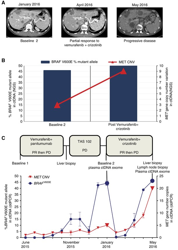 Emergence Of Met Hyper Amplification At Progression To Met And Braf Inhibition In Colorectal Cancer British Journal Of Cancer
