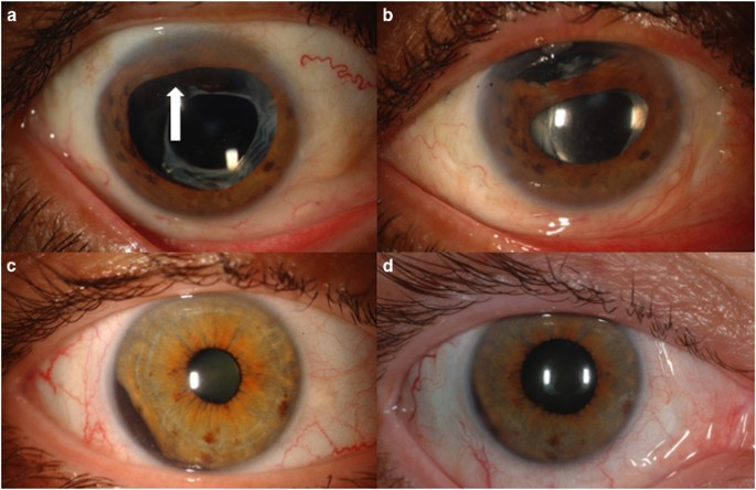 Uveal Melanoma Relatively Rare But Deadly Cancer Eye