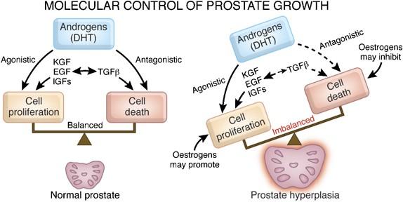 benign prostatic hyperplasia pathogenesis)
