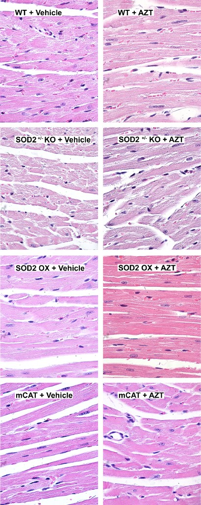 Transgenic Mitochondrial Superoxide Dismutase And Mitochondrially
