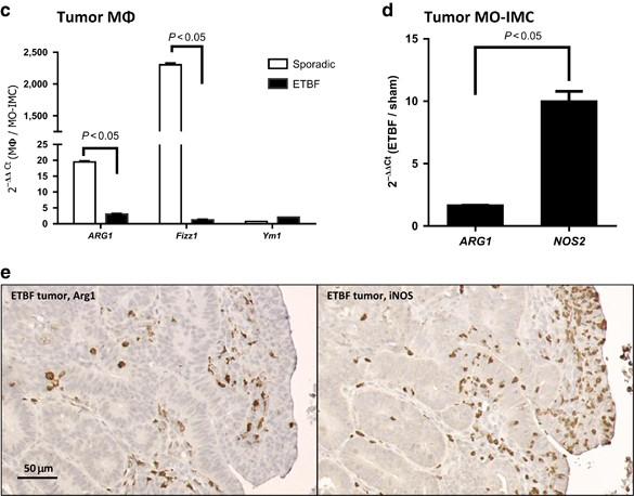 The Myeloid Immune Signature Of Enterotoxigenic Bacteroides Fragilis Induced Murine Colon Tumorigenesis Mucosal Immunology