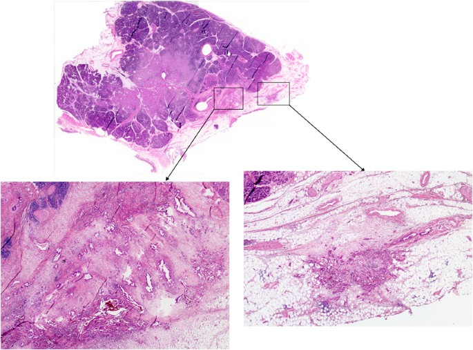 Tumor Deposits Are Encountered In Advanced Colorectal Cancer And Other Adenocarcinomas An Expanded Classification With Implications For Colorectal Cancer Staging System Including A Unifying Concept Of In Transit Metastases Modern Pathology