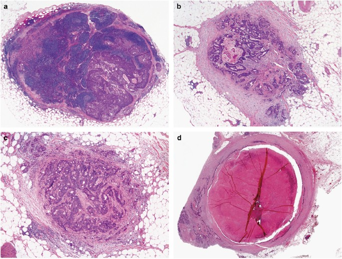 Serosal Surfaces Mucin Pools And Deposits Oh My Challenges In Staging Colorectal Carcinoma Modern Pathology
