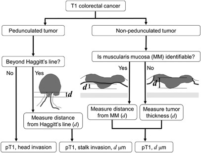 A Three Tier Classification System Based On The Depth Of Submucosal Invasion And Budding Sprouting Can Improve The Treatment Strategy For T1 Colorectal Cancer A Retrospective Multicenter Study Modern Pathology