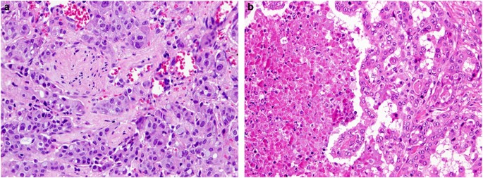 adenocarcinoma nos salivary gland pathology outlines
