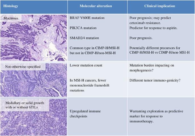 rectal cancer histological types tratamentul helmintic este o boală terapeutică