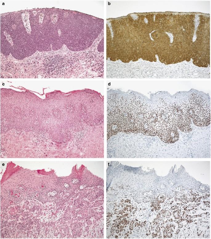 hpv 16 and penile cancer recenzii pentru lac de verucă plantară