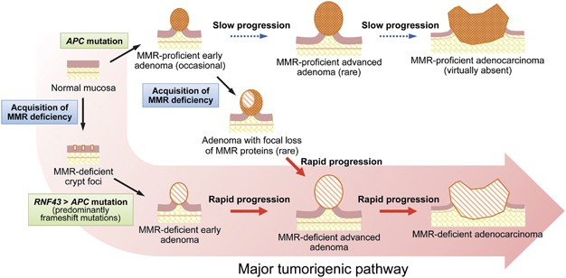 Mismatch Repair Deficiency Commonly Precedes Adenoma Formation In Lynch Syndrome Associated Colorectal Tumorigenesis Modern Pathology