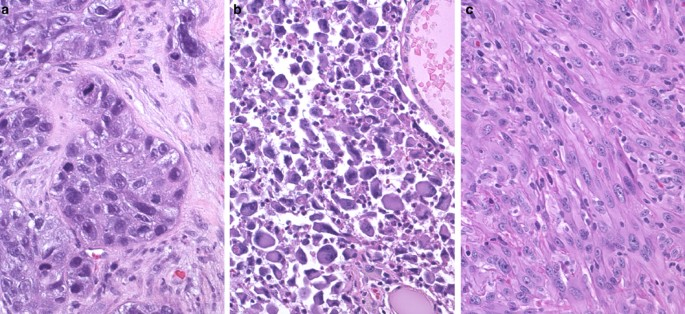 Braf Mutations In Anaplastic Thyroid Carcinoma Implications For