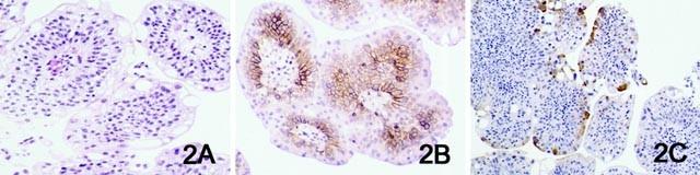 Fordított papilloma hólyag ck20, A hólyag urothelialis carcinoma tünetei és kezelése