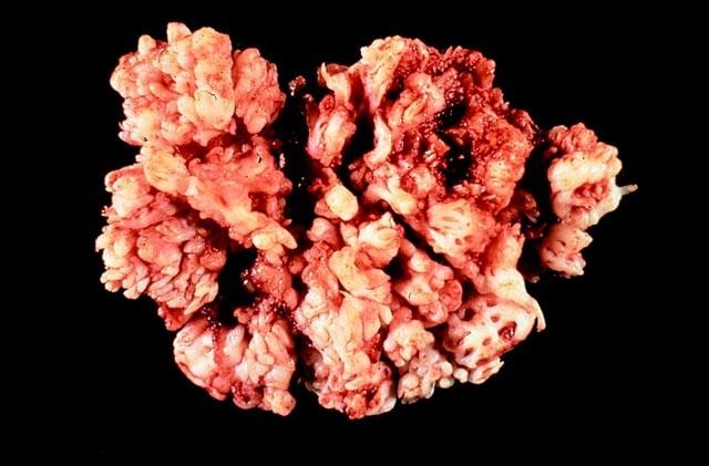 inverted papilloma neoplastic