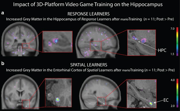 Impact of video games on plasticity of the hippocampus