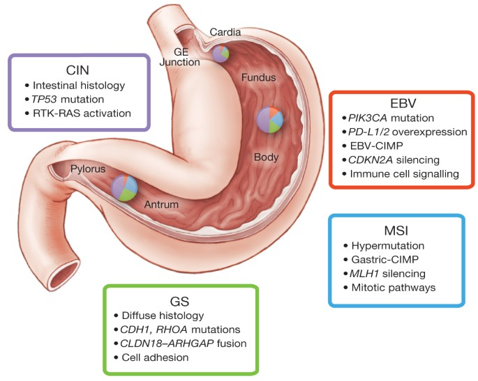 Gastric cancer molecular subtypes
