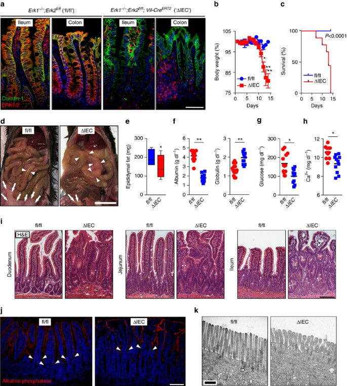 Erk5 Signalling Rescues Intestinal Epithelial Turnover And Tumour Cell Proliferation Upon Erk1 2 Abrogation Nature Communications