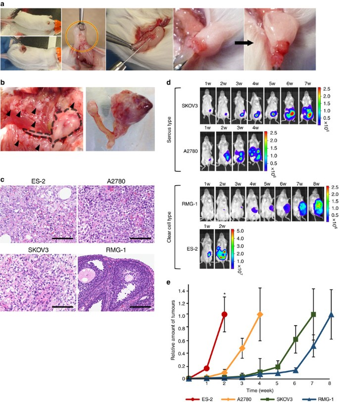 Malignant Extracellular Vesicles Carrying Mmp1 Mrna Facilitate Peritoneal Dissemination In Ovarian Cancer Nature Communications
