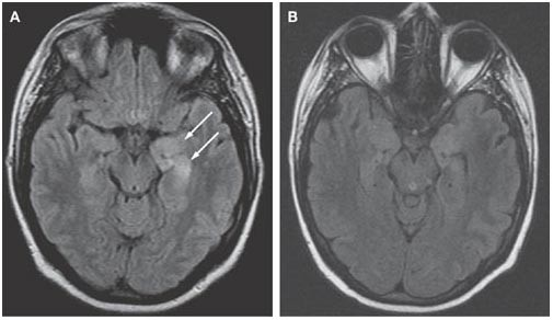 A Patient With Encephalitis Associated With Nmda Receptor