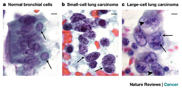 Nuclear structure in cancer cells | Nature Reviews Cancer