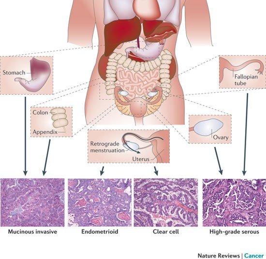 Rethinking Ovarian Cancer Recommendations For Improving Outcomes Nature Reviews Cancer