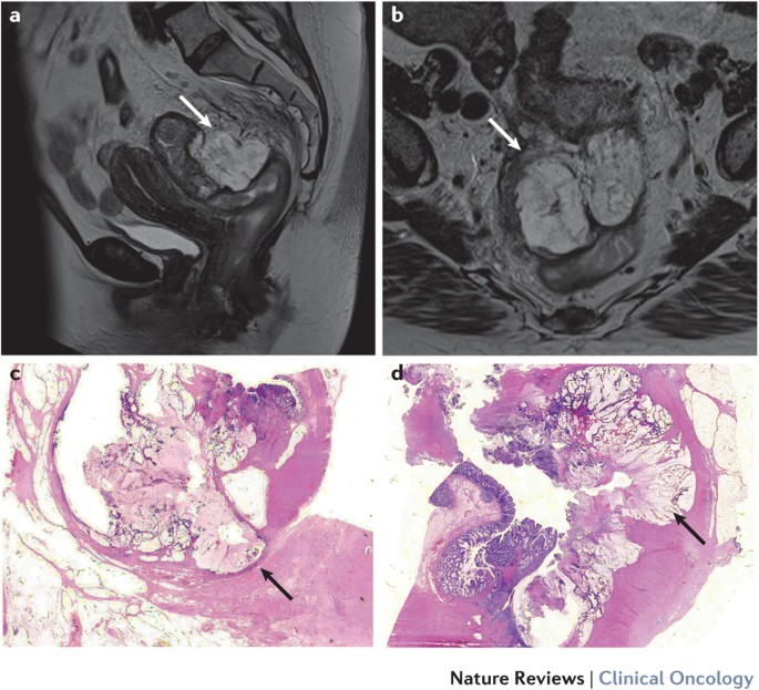 Advances In The Care Of Patients With Mucinous Colorectal Cancer Nature Reviews Clinical Oncology