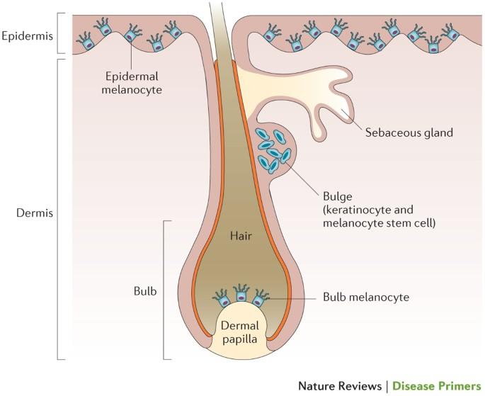Vitiligo Nature Reviews Disease Primers