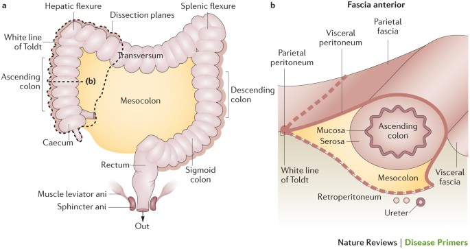 papiloma intraductal es cancer