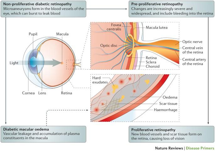 Diabetic Retinopathy Nature Reviews Disease Primers