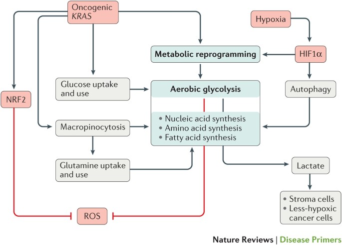 pancreatic cancer review
