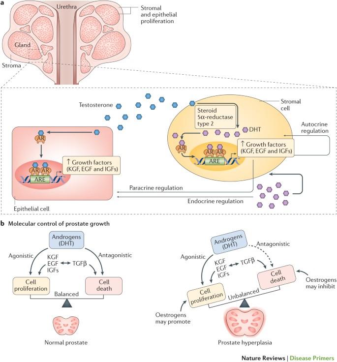 Prostate Hyperplasia 1 St Mi az)