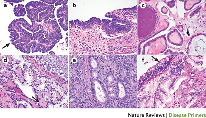 Ovarian Cancer Nature Reviews Disease Primers