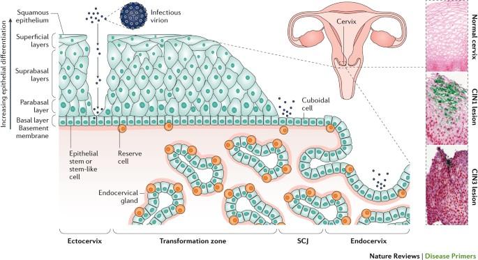 Pancreatic cancer painful Human papilloma virusu( hpv), Pancreatic cancer human papillomavirus