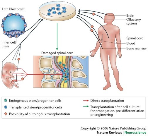 Therapeutic interventions after spinal cord injury | Nature