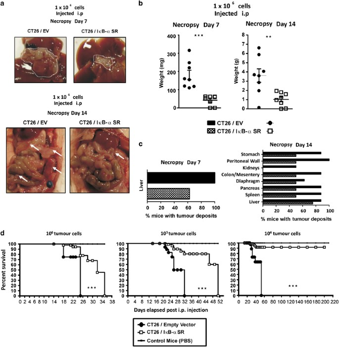 Targeting Colon Cancer Cell Nf Kb Promotes An Anti Tumour M1 Like Macrophage Phenotype And Inhibits Peritoneal Metastasis Oncogene