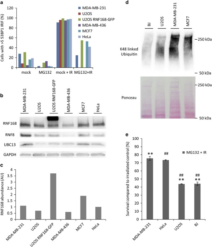 Tumors overexpressing RNF168 show altered DNA repair and