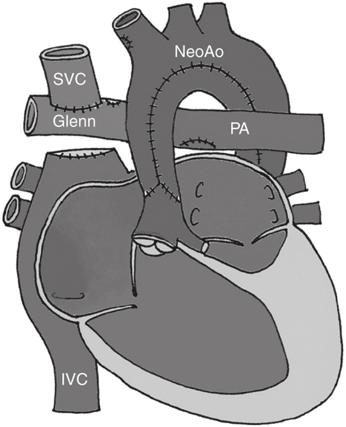 Hypoplastic Left Heart Syndrome From Comfort Care To Long Term Survival Pediatric Research