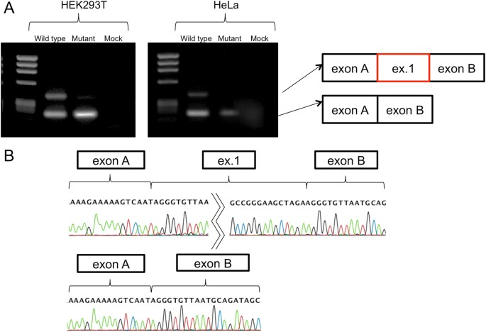 Functional splicing analysis in an infantile case of
