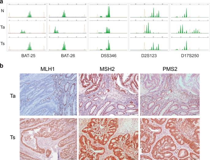 Development of an MSI-positive colon tumor with aberrant DNA