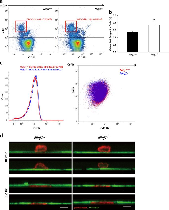 Ninjurin1 positively regulates osteoclast development by enhancing