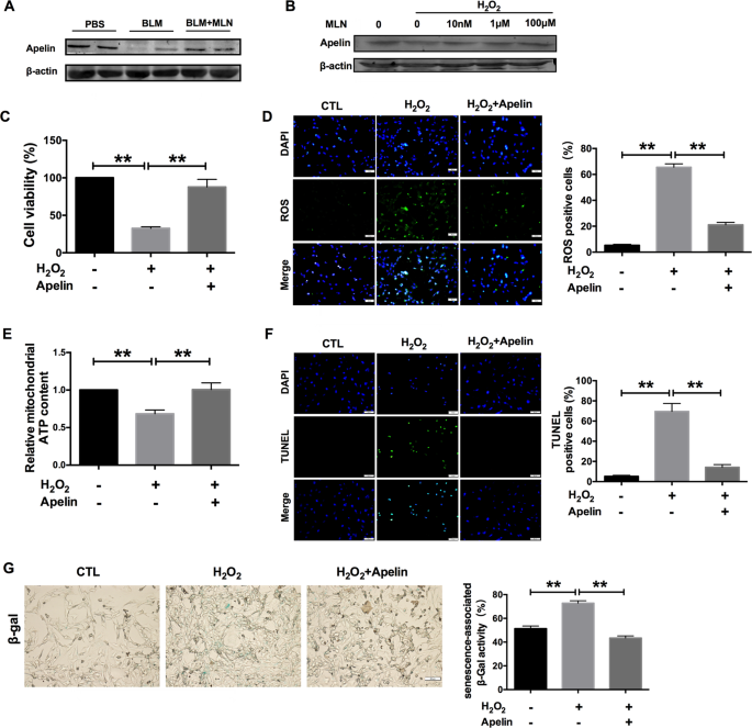 Melatonin prevents lung injury by regulating apelin 13 to