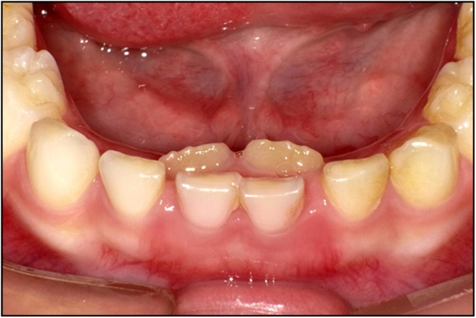 Common dental diseases in children and malocclusion