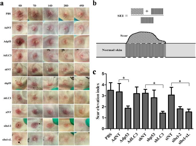 Wild-type p53-modulated autophagy and autophagic fibroblast