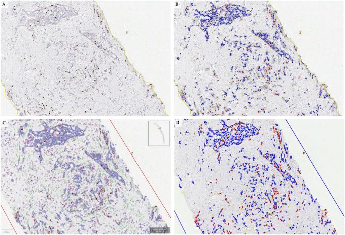 Ki67 reproducibility using digital image analysis: an inter