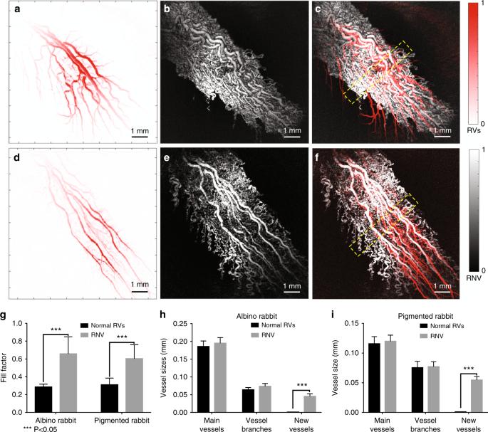 High-resolution, in vivo multimodal photoacoustic microscopy
