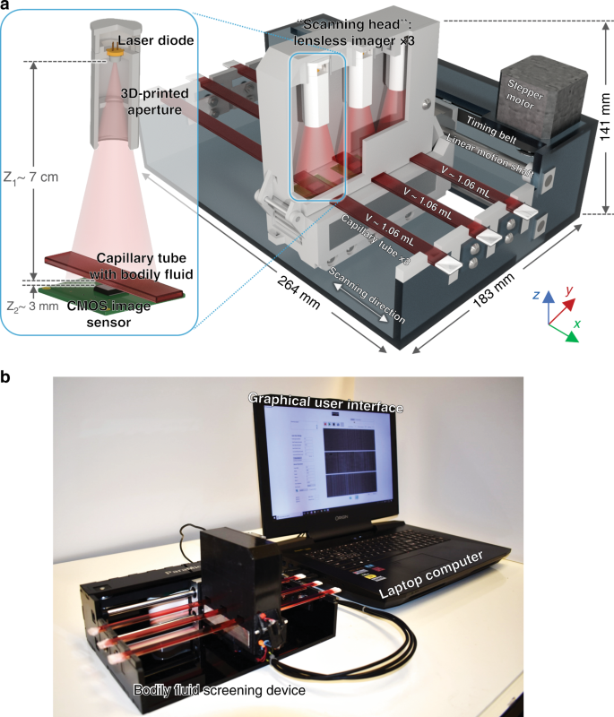 Motility-based label-free detection of parasites in bodily fluids