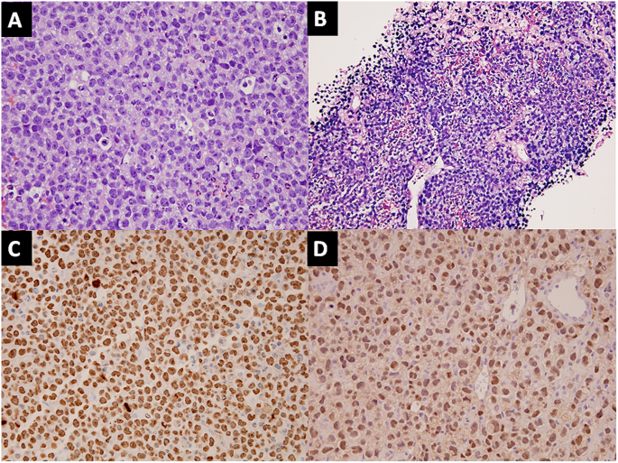 High-grade B-cell lymphomas with TdT expression: a