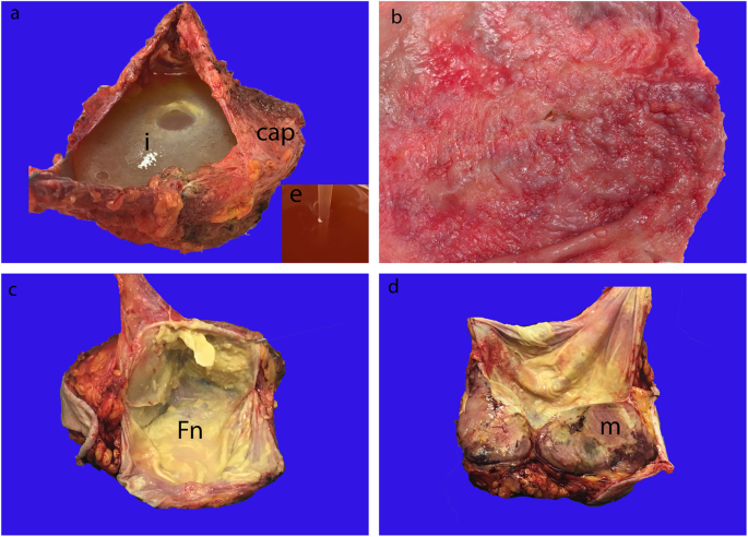 Breast implant-associated anaplastic large cell lymphoma: a review