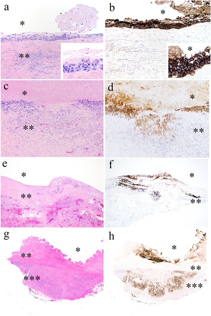 Breast implant-associated anaplastic large cell lymphoma: a
