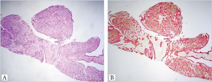 intraductal papilloma tamoxifen